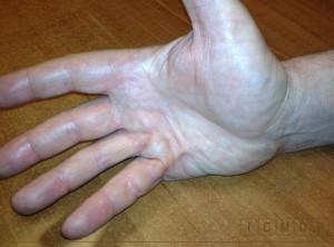 bride du cinquieme doigt dans une maladie de Dupuytren