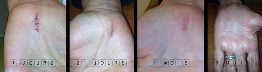evolution de la cicatrice apres operation du canal carpien a ciel ouvert
