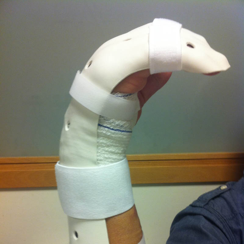 orthese duran lesion flechisseurs