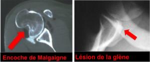 luxation-epaule-encoche-malgaigne-lesion-glene