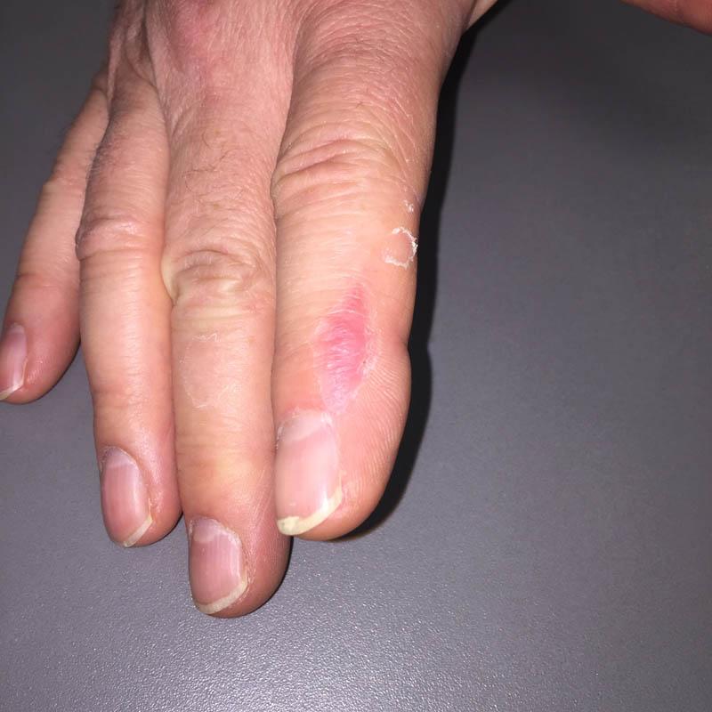 cicatrisation à un mois après greffe de peau totale