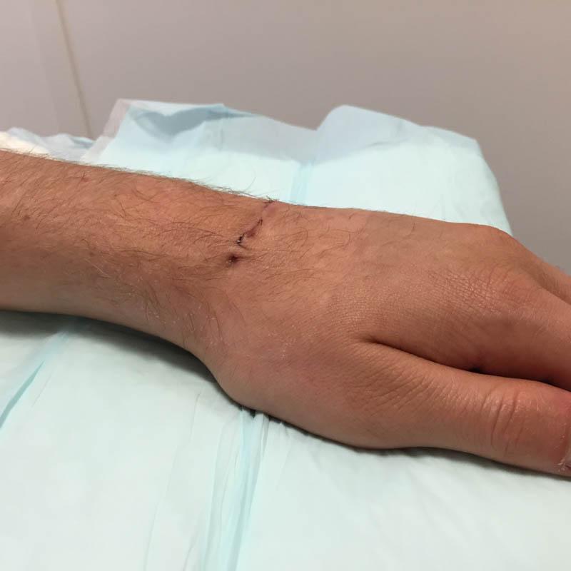 Cicatrice à 7 jours postopératoire du dos du poignet après exérèse d'un kyste synovial du poignet
