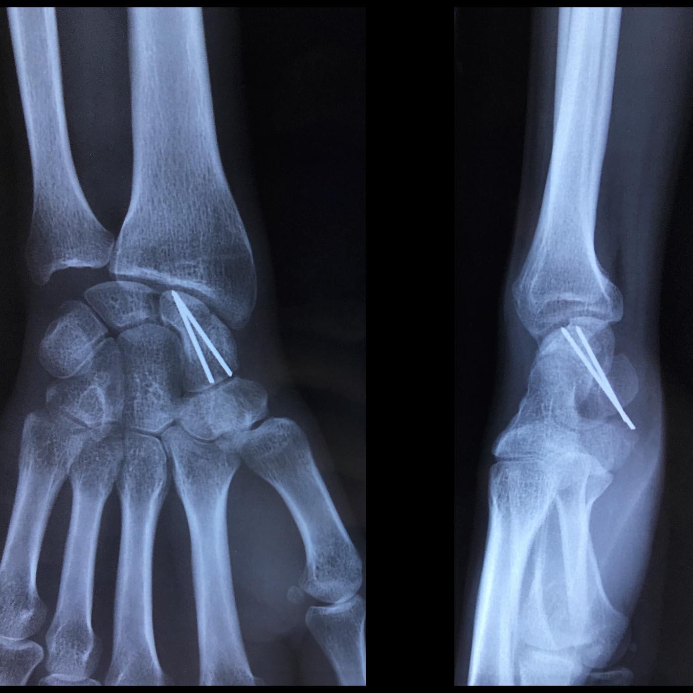 Greffe osseuse du scaphoïde pour pseudarthrose, ostéosynthèse par deux broches qui seront gardées 3-6 mois.