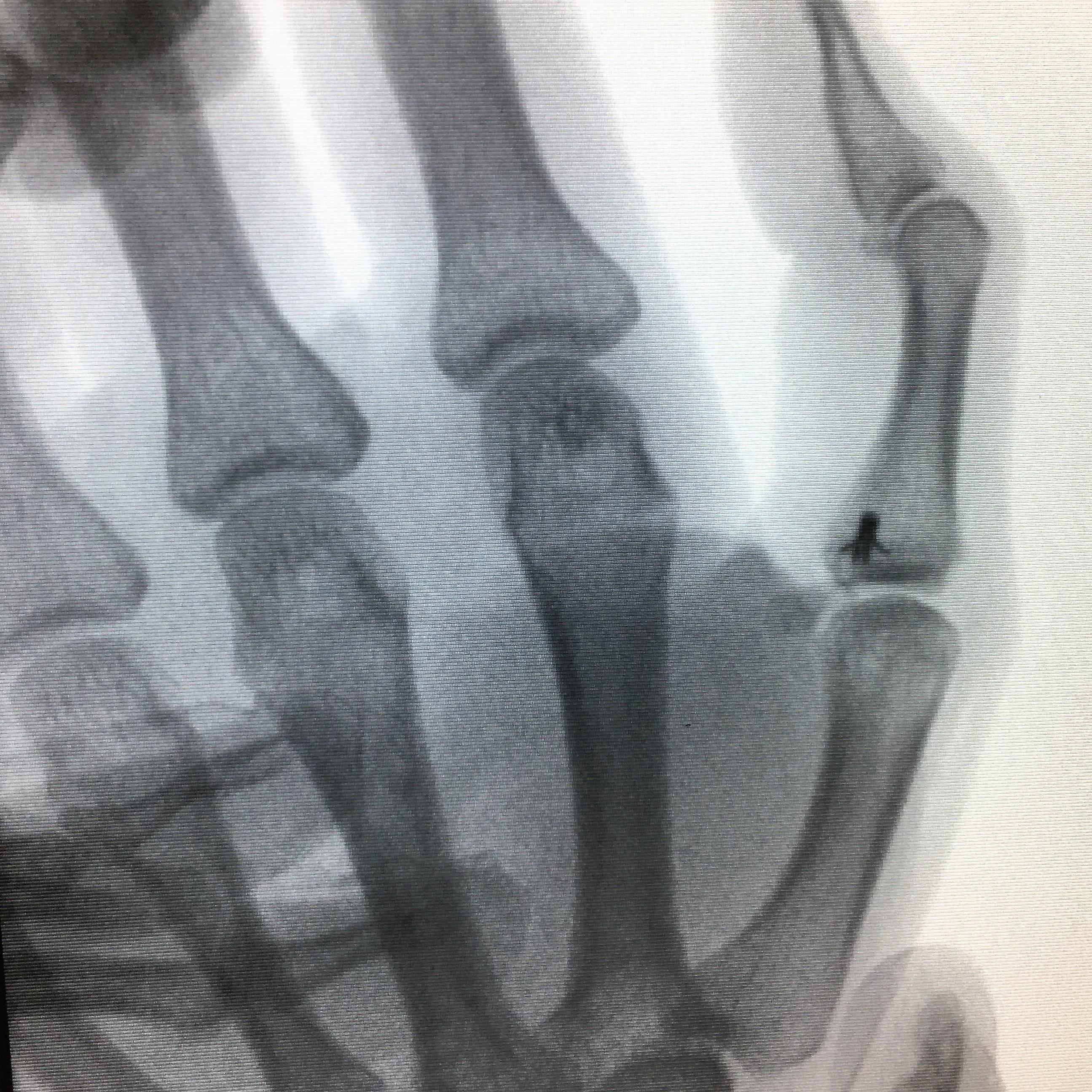 Réinsertion du ligament interne du pouce. Radiographie de profil.