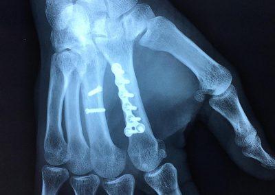 Fractures des 2ème et 3ème métacarpiens