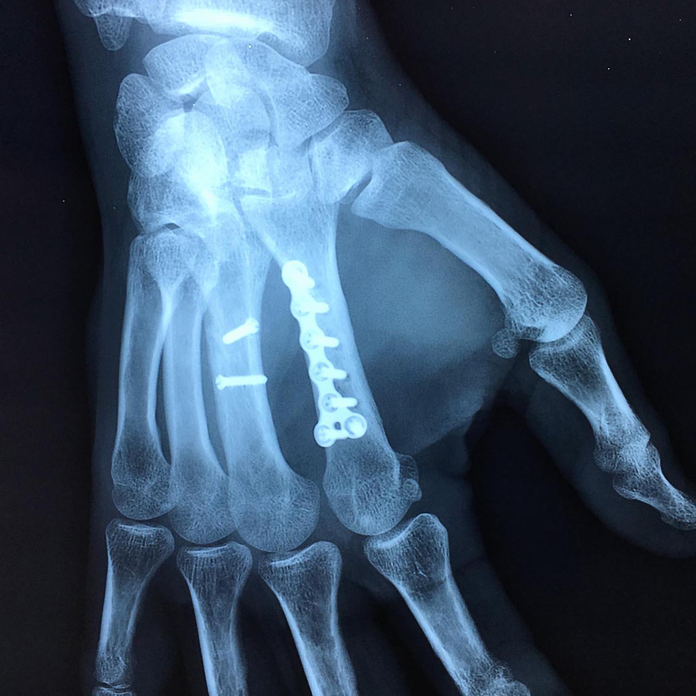 Fractures de la main | L'institut de chirurgie de la main de ...