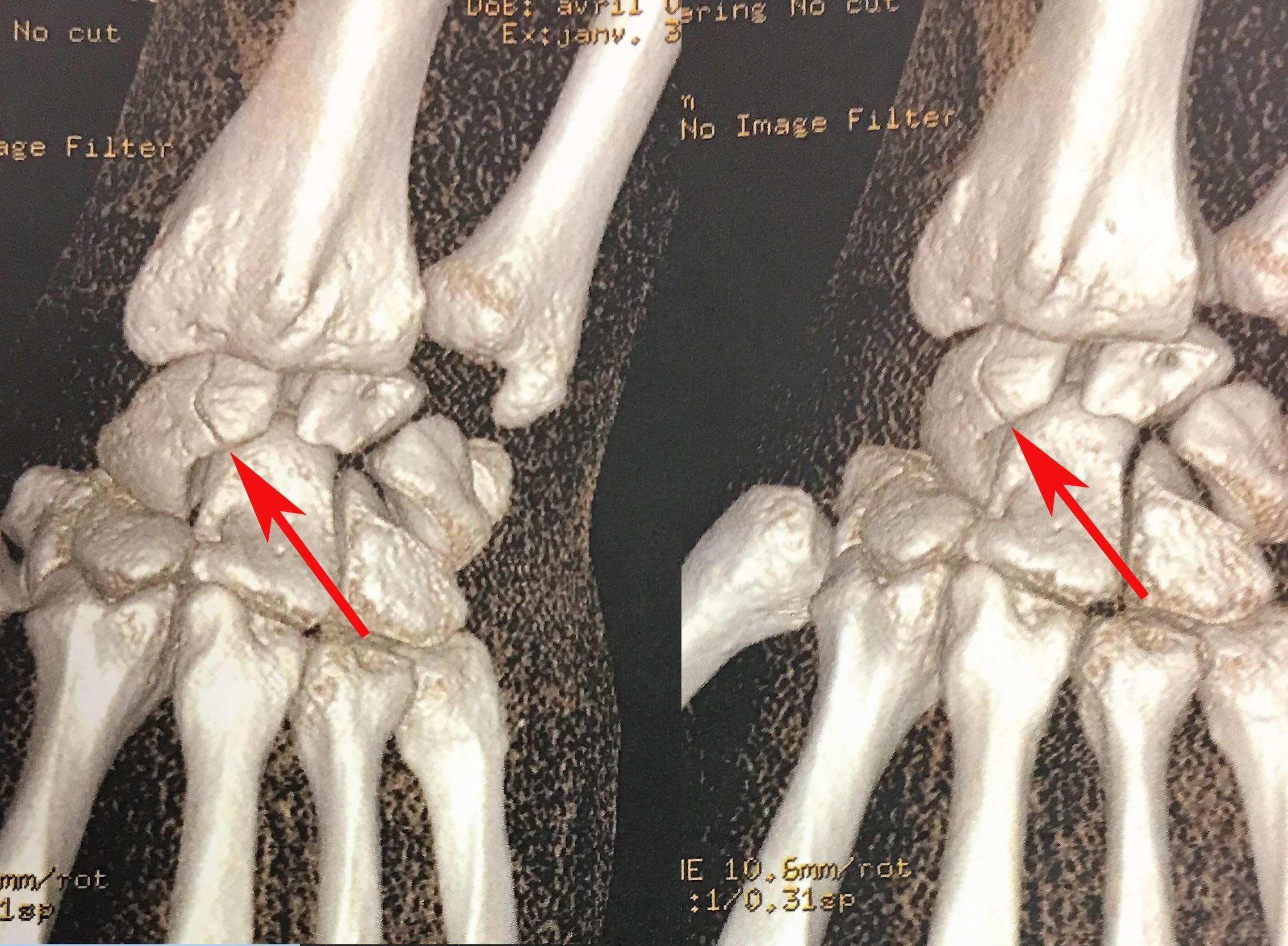 Scanner avec reconstruction qui montre une fracture non déplacée du pôle proximal du scaphoïde