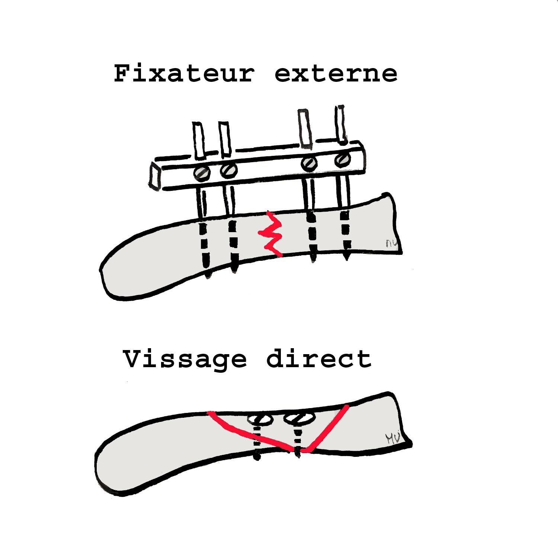 Ostéosynthèse par fixateur externe (en haut) et vissage direct (en bas)