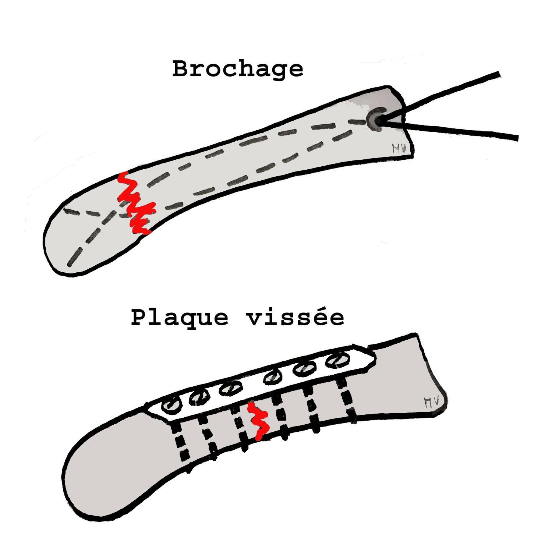 Ostéosynthèse par broches centro-médullaires (en haut) et plaque vissée (en bas)