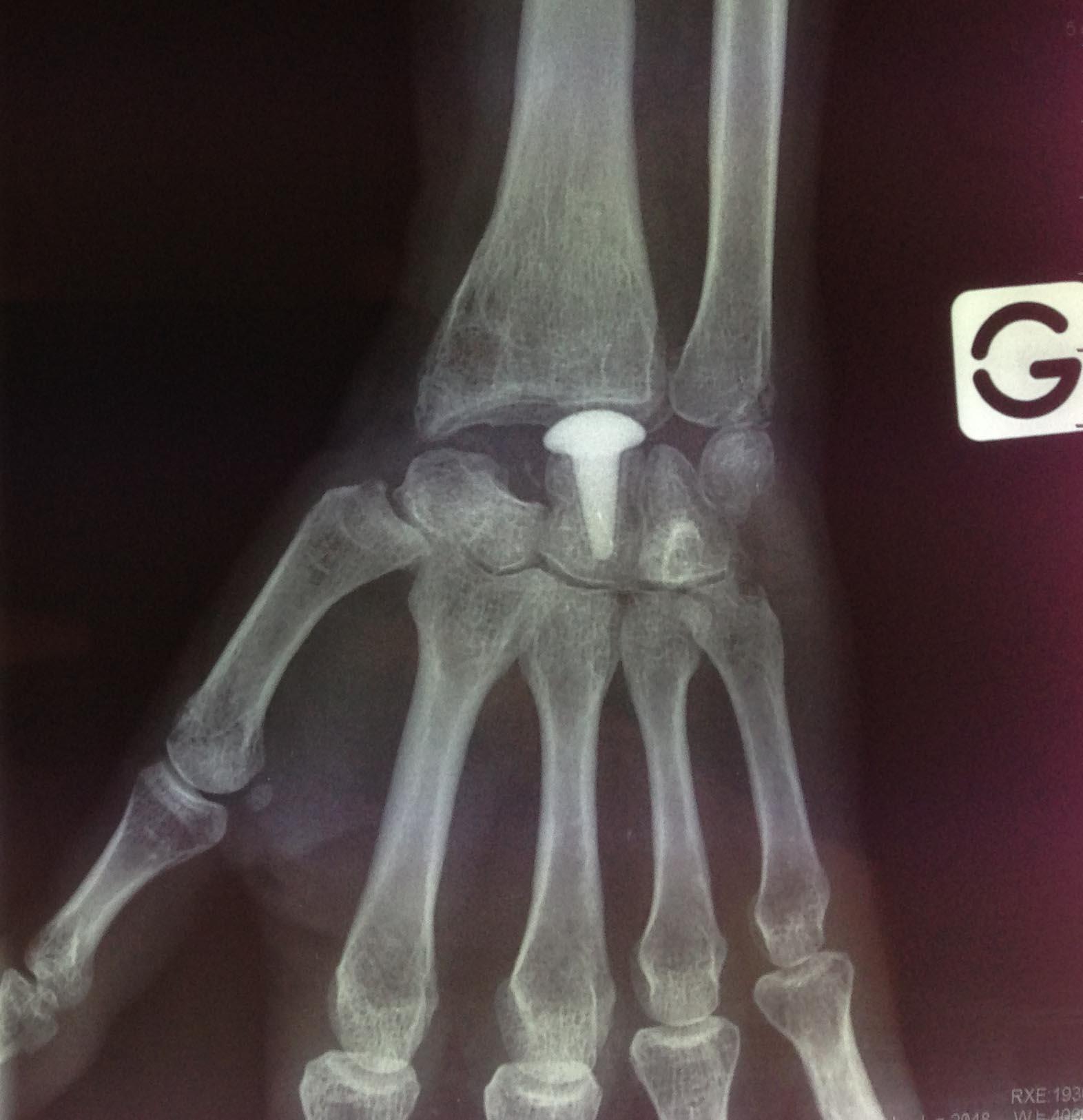Radiographie de face montrant une résection de la première rangée des os du carpe avec implant en pyrocarbone.