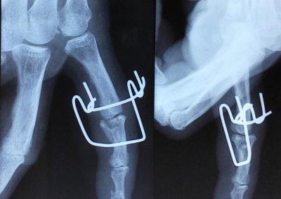 La fracture comminutive avec enfoncement de la base de la 2ème phalange