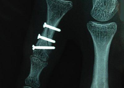 Fracture de la diaphyse de la 1ère phalange du 5ème doigt
