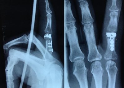 Fracture articulaire et comminutive de la tête de la 1ère phalange du 5ème doigt